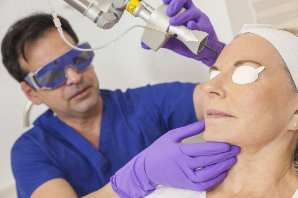 Laserbehandlung von Aknenarben