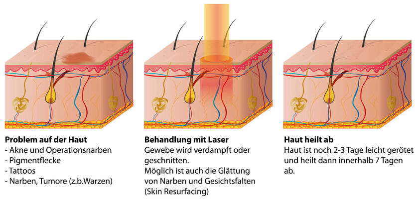 what is ablative laser