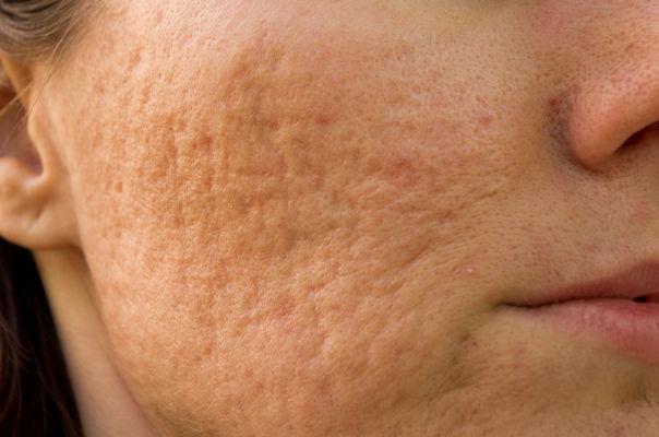 Aknenarben im Gesicht einer Frau