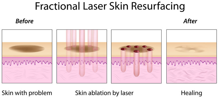 Fractional Laser Skin Resurfacing Schema