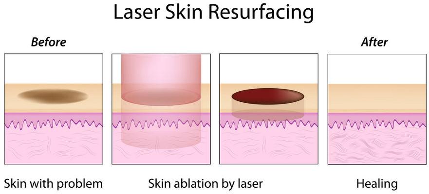 Laser Skin Resurfacing Schema